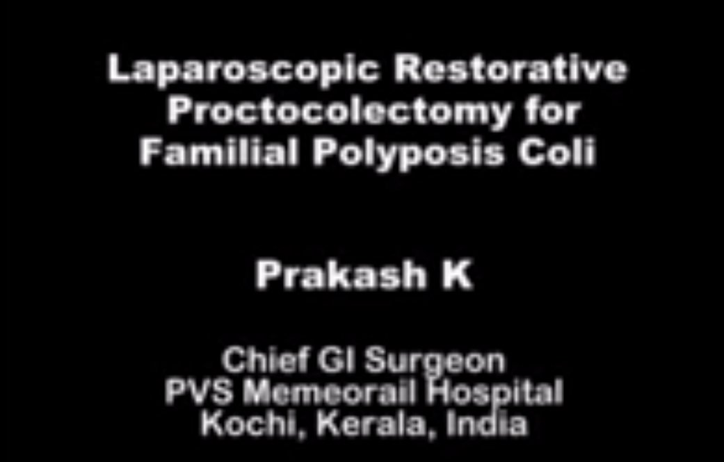 Laparoscopic Restrorative proctocolectomy