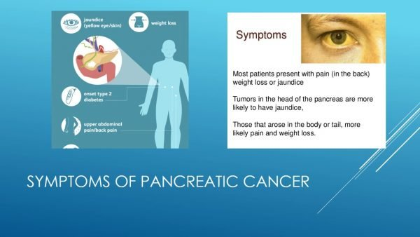 Surgery for pancreatic tumours Dr Prakash K Kochi