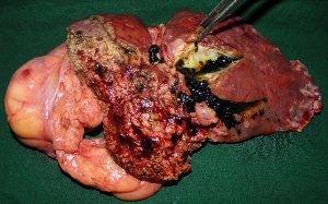 intrahepatic-stones